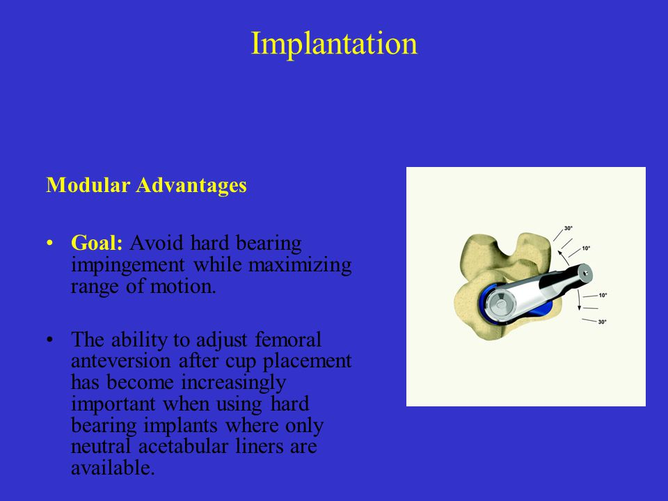 Implantation Modular Advantages