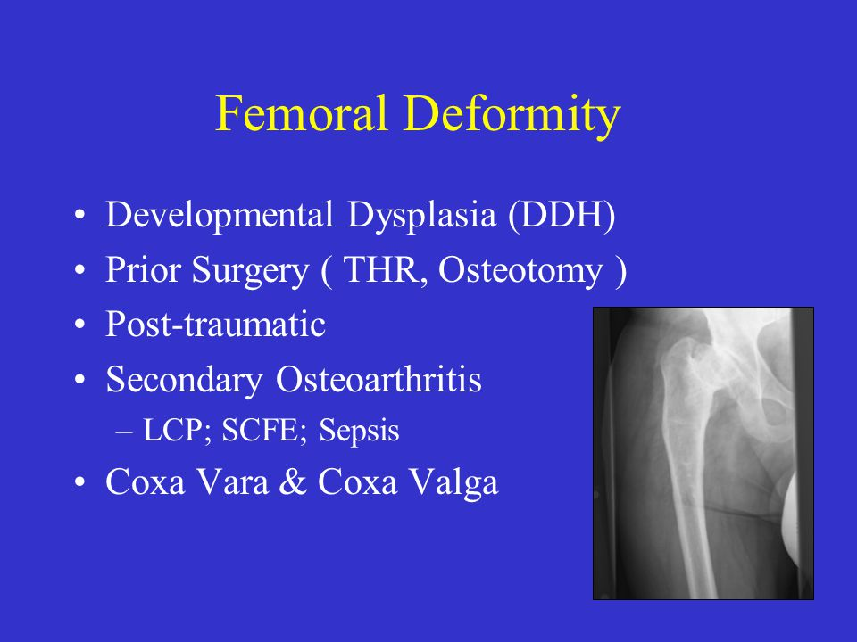 Femoral Deformity Developmental Dysplasia (DDH)