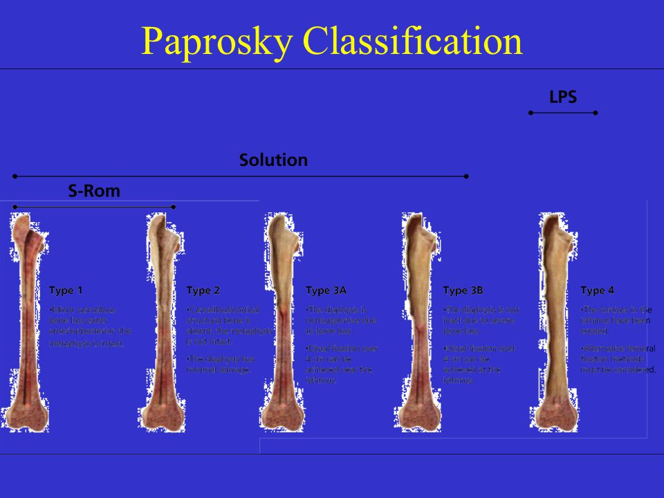 Paprosky Classification