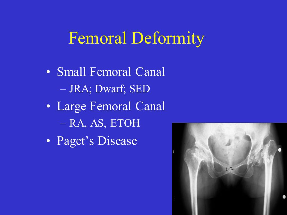Femoral Deformity Small Femoral Canal Large Femoral Canal