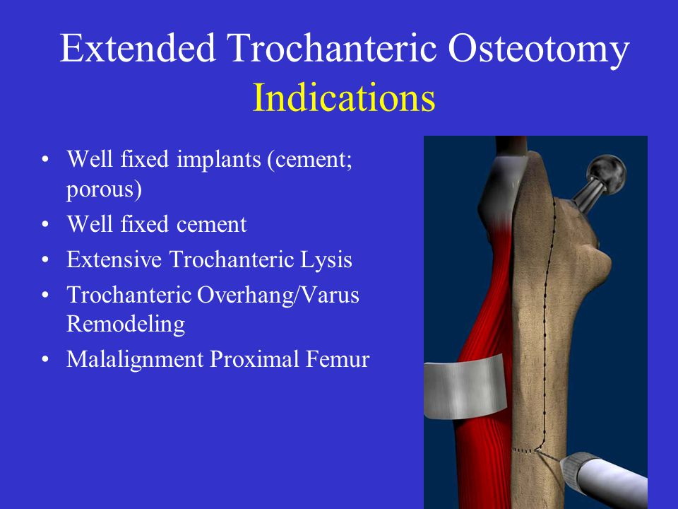 Extended Trochanteric Osteotomy Indications