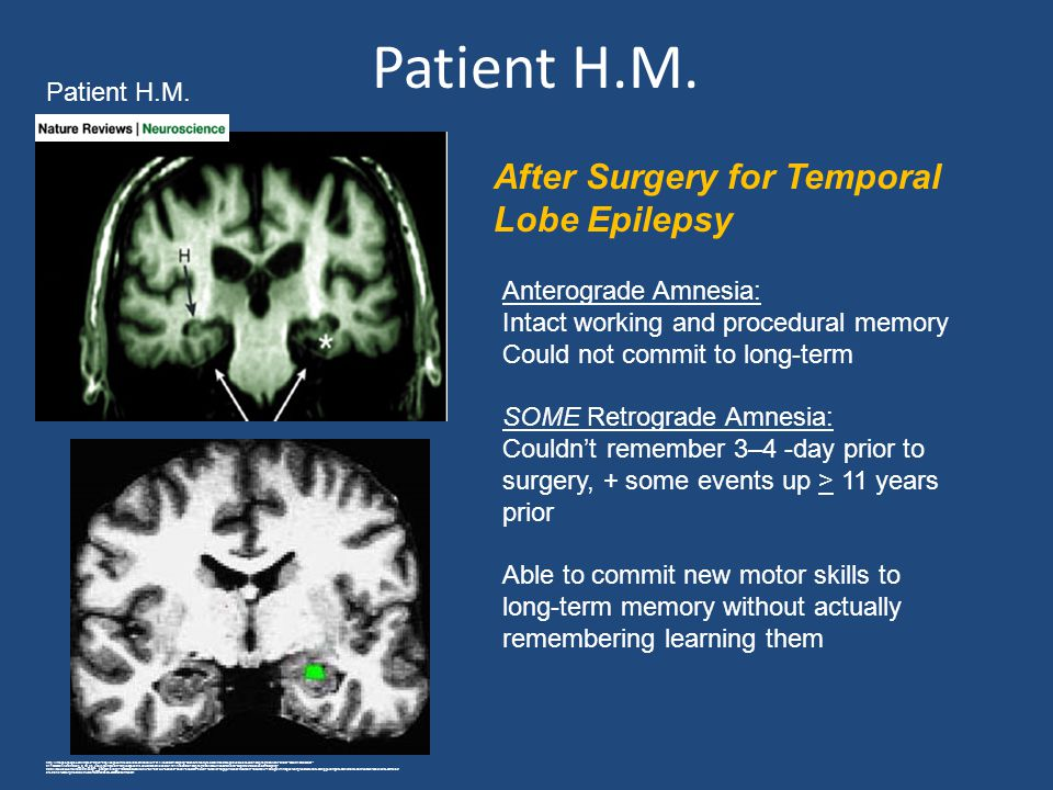 Patient H.M. After Surgery for Temporal Lobe Epilepsy Patient H.M.