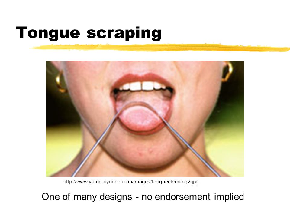 Tongue scraping One of many designs - no endorsement implied