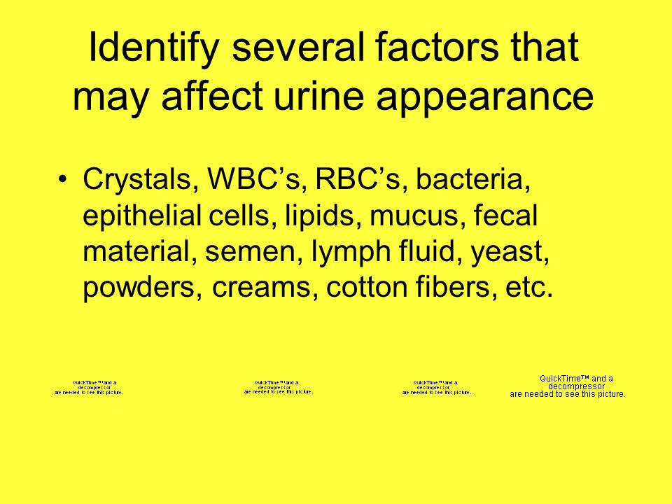 Identify several factors that may affect urine appearance