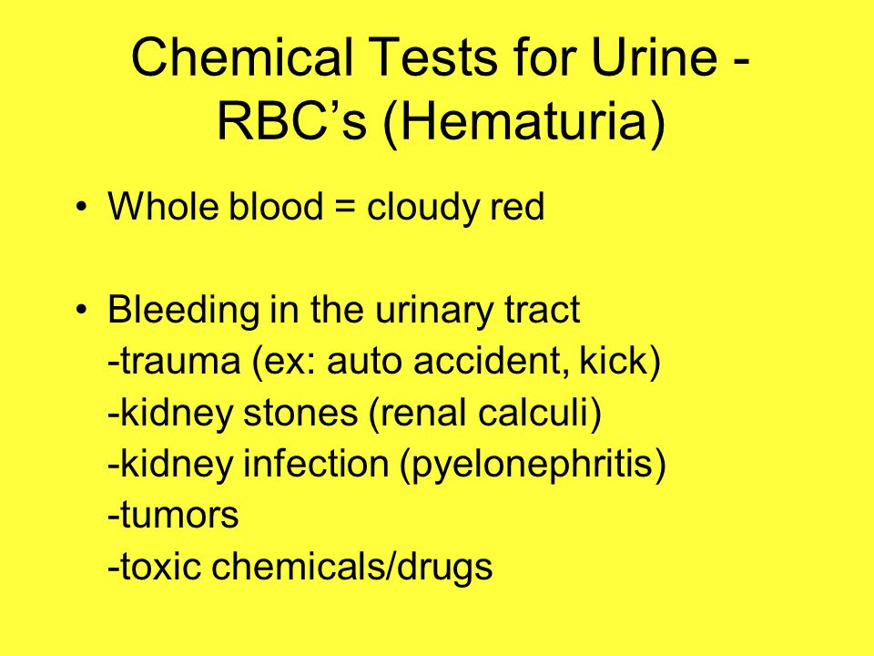 Chemical Tests for Urine - RBC's (Hematuria)