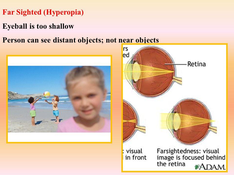 Far Sighted (Hyperopia) Eyeball is too shallow