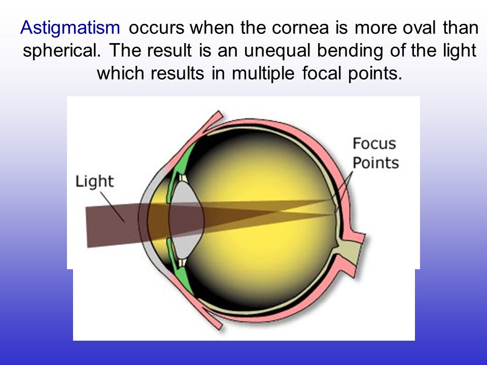Astigmatism occurs when the cornea is more oval than spherical