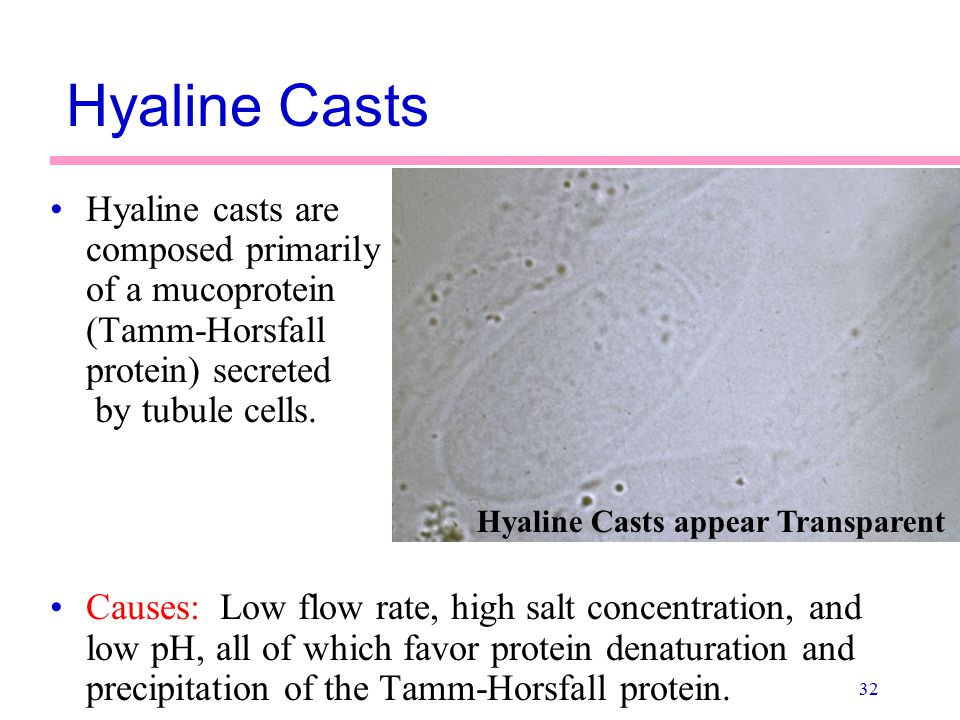 Hyaline Casts Hyaline casts are composed primarily of a mucoprotein (Tamm-Horsfall protein) secreted by tubule cells.