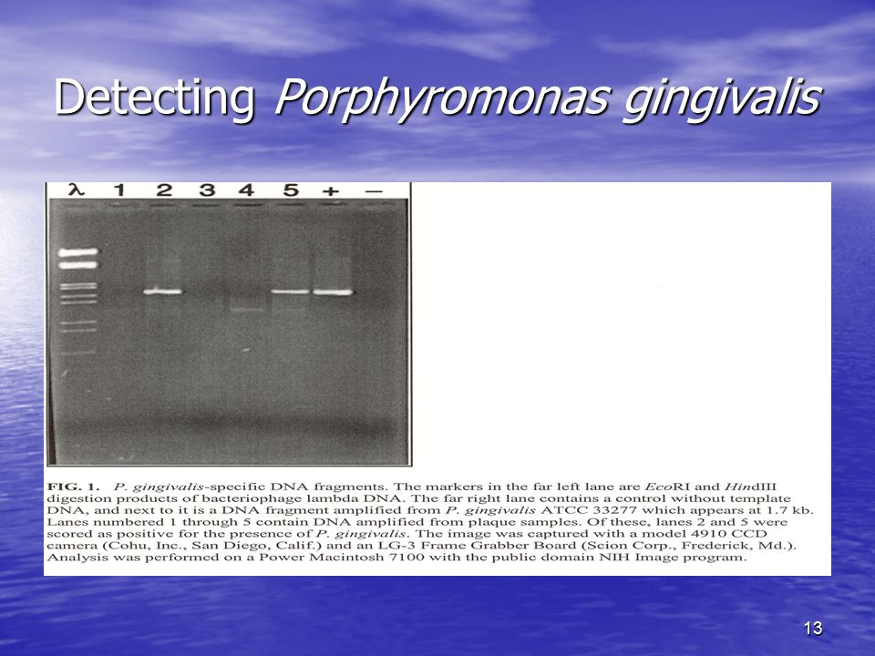 Detecting Porphyromonas gingivalis