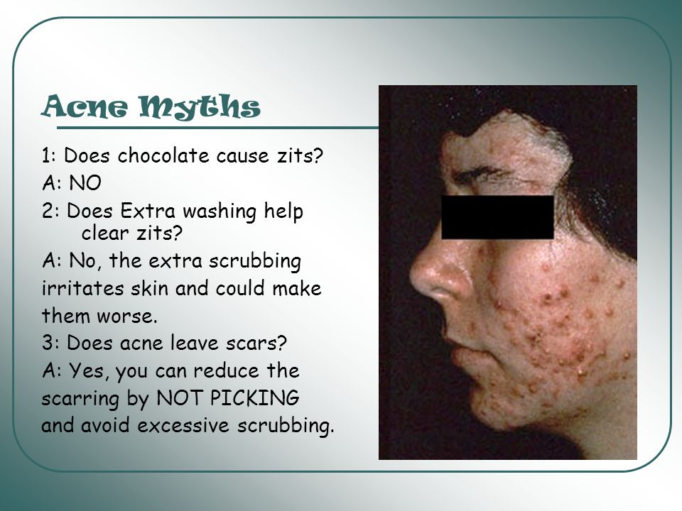 Acne Myths 1: Does chocolate cause zits A: NO