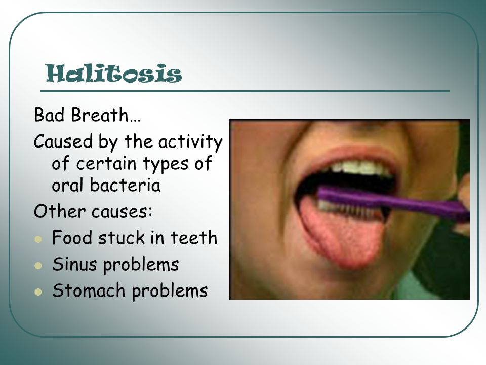 Halitosis Bad Breath… Caused by the activity of certain types of oral bacteria. Other causes: Food stuck in teeth.