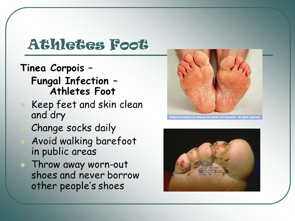 Athletes Foot Tinea Corpois – Fungal Infection – Athletes Foot
