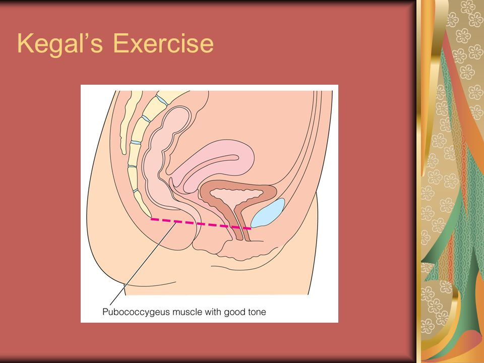 Kegal's Exercise