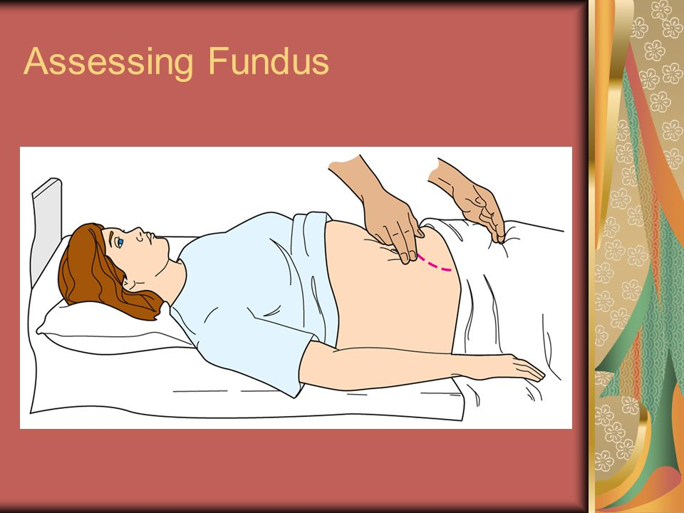 Assessing Fundus
