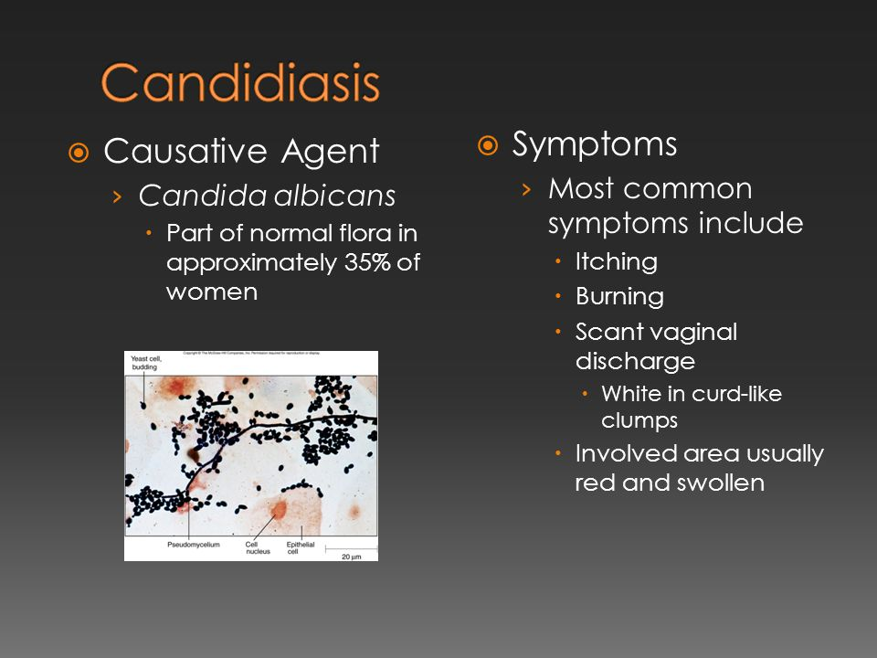 Candidiasis Symptoms Causative Agent Most common symptoms include