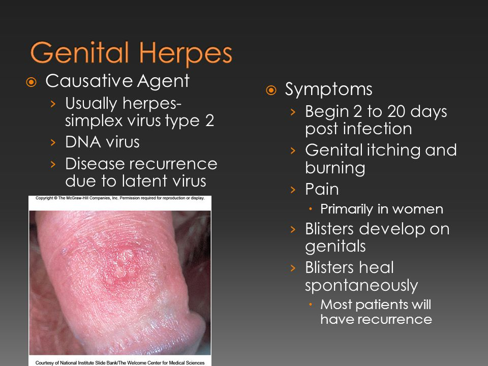 Genital Herpes Causative Agent Symptoms