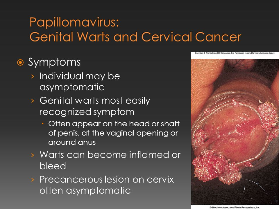 Papillomavirus: Genital Warts and Cervical Cancer