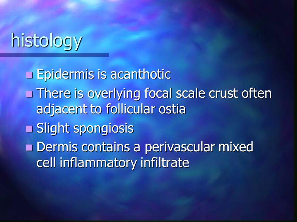 histology Epidermis is acanthotic