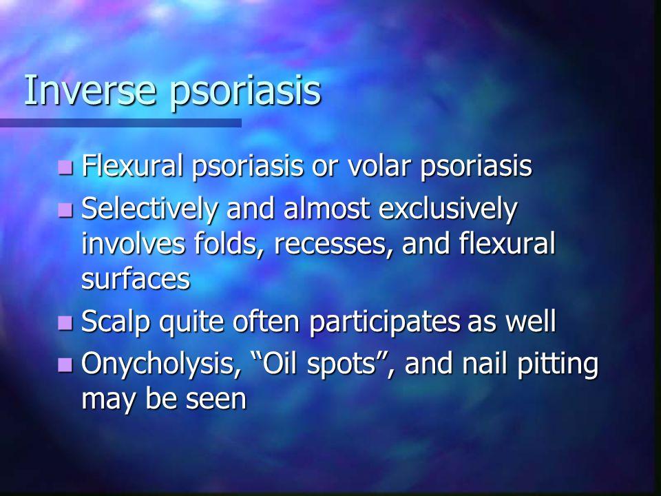 Inverse psoriasis Flexural psoriasis or volar psoriasis