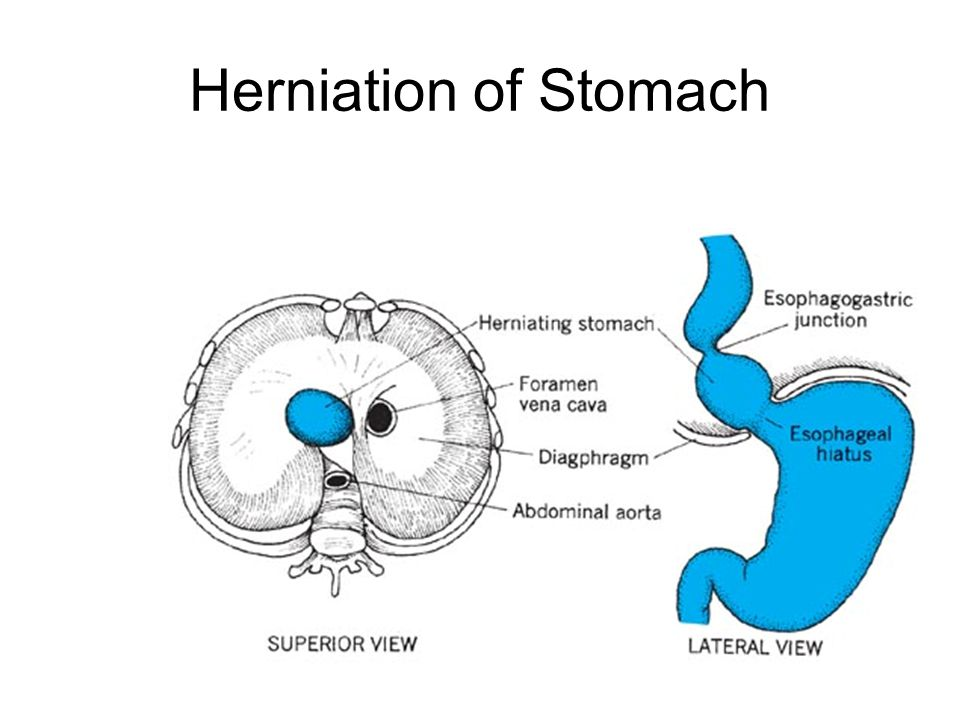 Herniation of Stomach