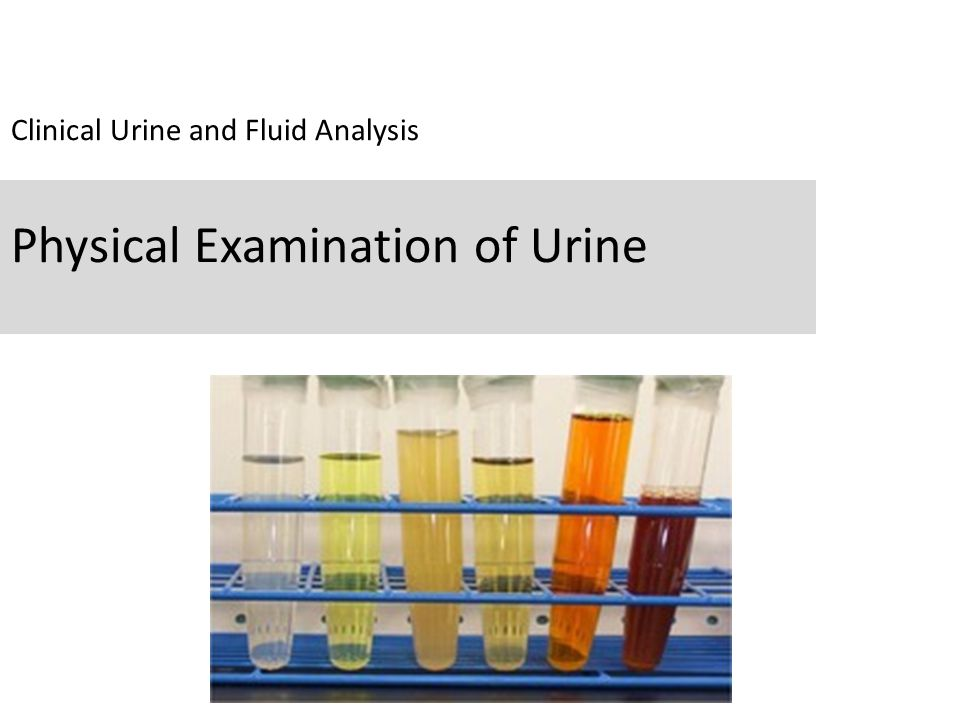 Clinical Urine and Fluid Analysis Physical Examination of Urine