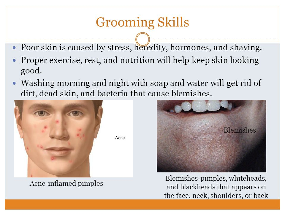Acne-inflamed pimples