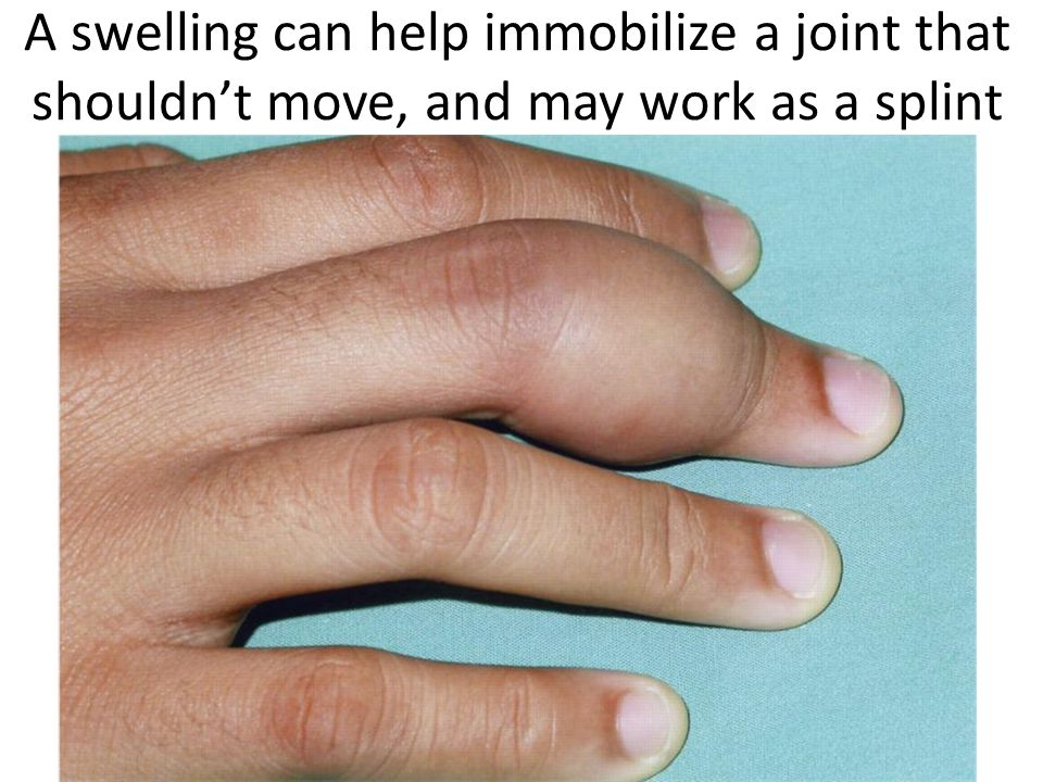 A swelling can help immobilize a joint that shouldn't move, and may work as a splint
