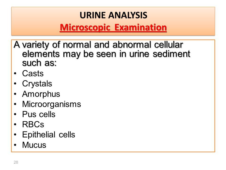 URINE ANALYSIS Microscopic Examination