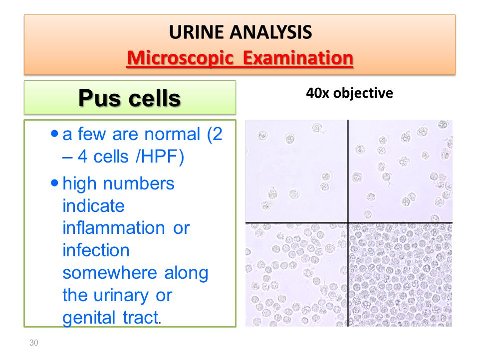 analysis of urine to detect disease Screening for these disorders typically begins with an analysis to detect disease-specific metabolite patterns or profiles indicative of a lsd  analysis in urine.
