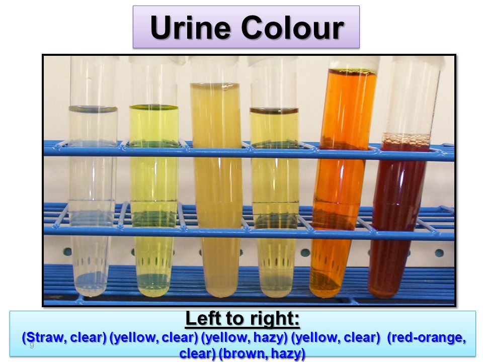 Urine Colour Left to right: (Straw, clear) (yellow, clear) (yellow, hazy) (yellow, clear) (red-orange, clear) (brown, hazy)