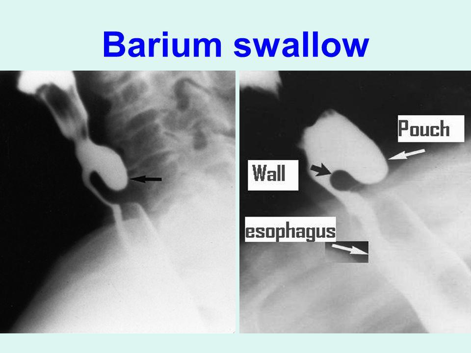 Barium swallow