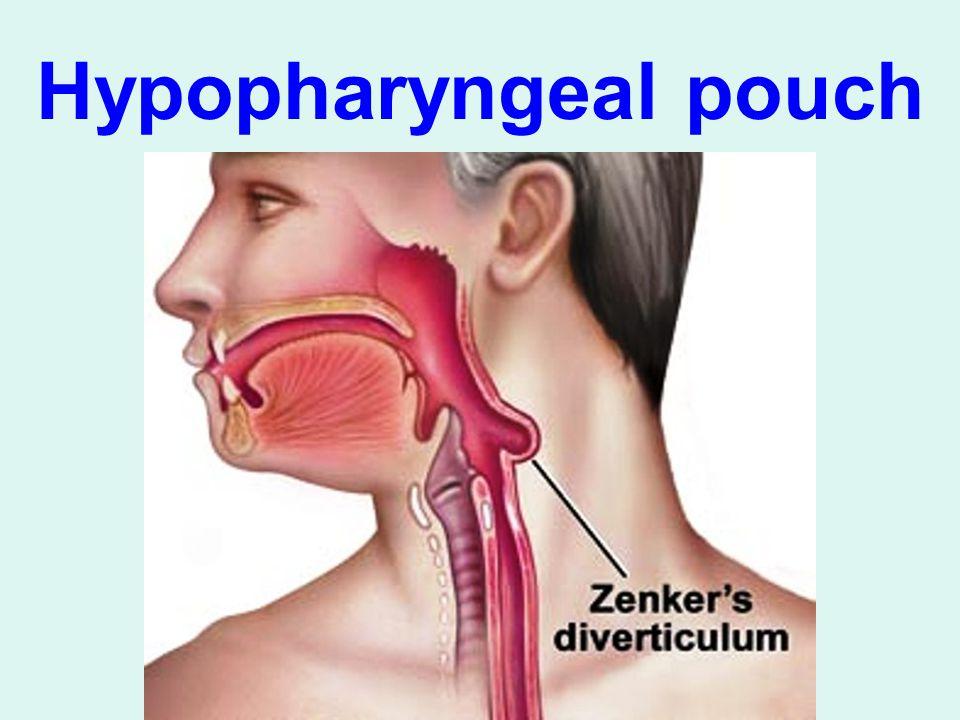 Hypopharyngeal pouch