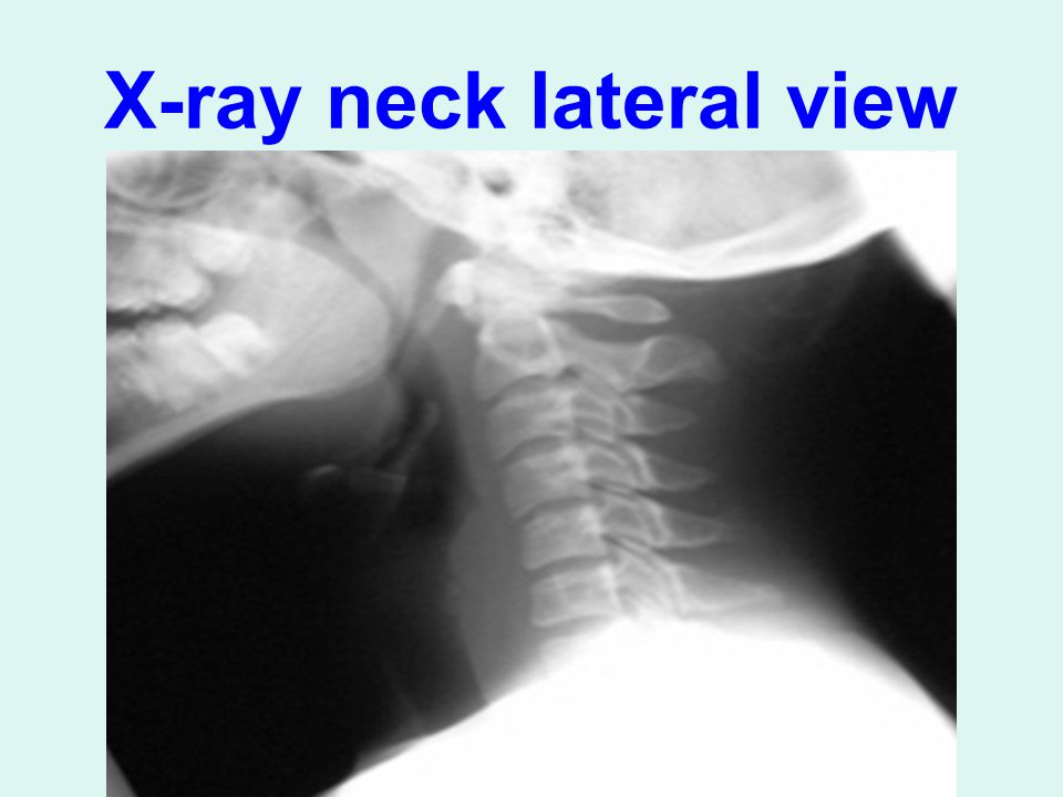 X-ray neck lateral view