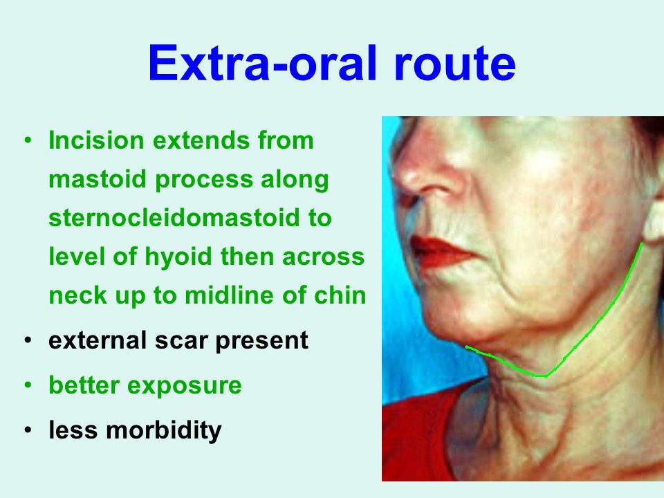 Extra-oral route Incision extends from mastoid process along sternocleidomastoid to level of hyoid then across neck up to midline of chin.