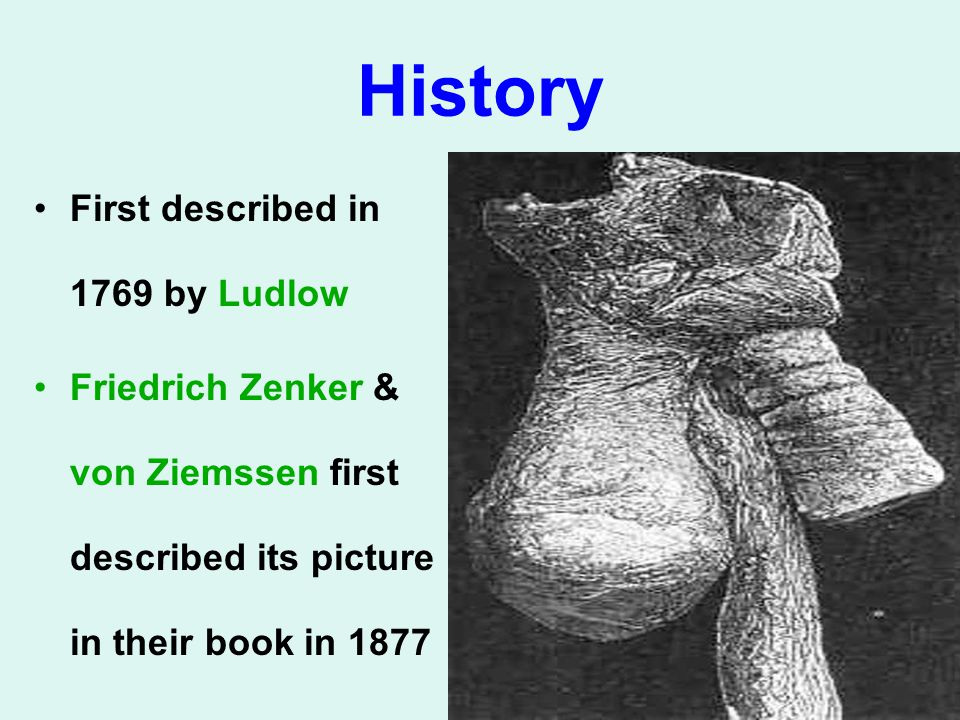 History First described in 1769 by Ludlow