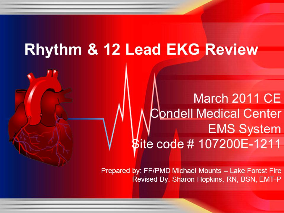 Rhythm & 12 Lead EKG Review