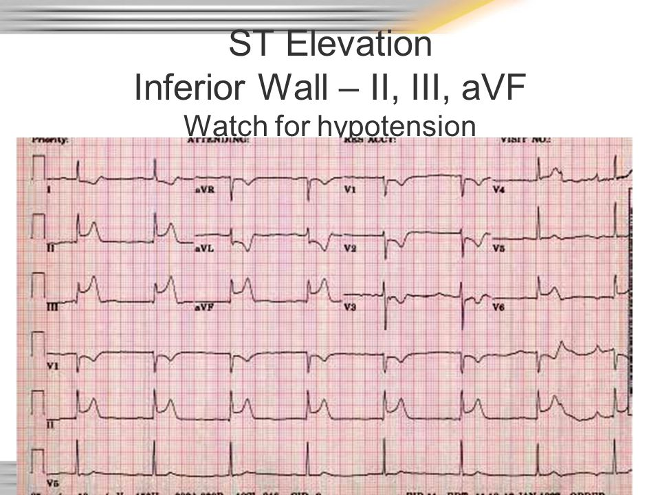 ST Elevation Inferior Wall – II, III, aVF Watch for hypotension
