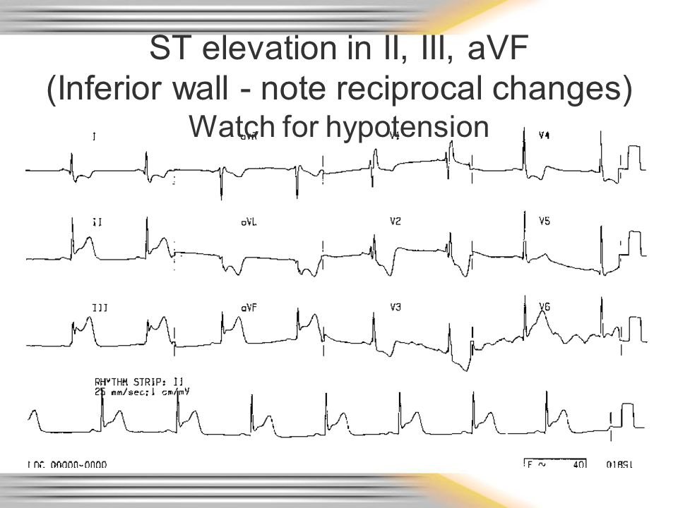 ST elevation in II, III, aVF (Inferior wall - note reciprocal changes) Watch for hypotension