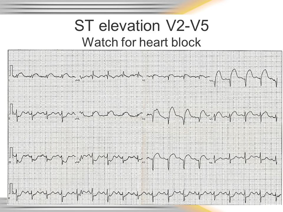 ST elevation V2-V5 Watch for heart block
