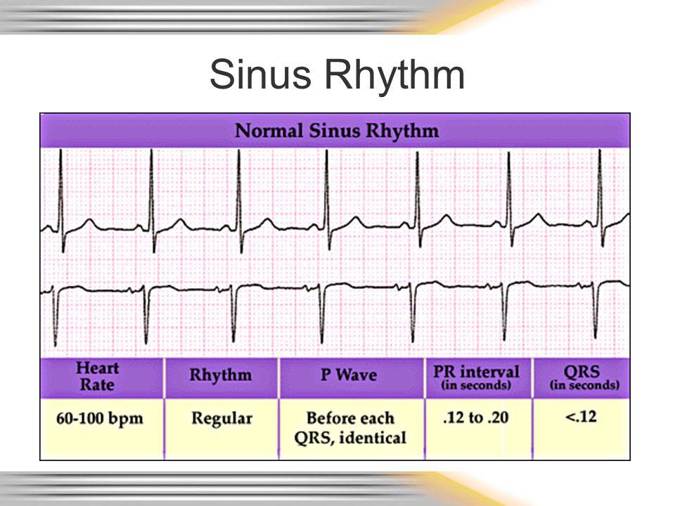 Sinus Rhythm