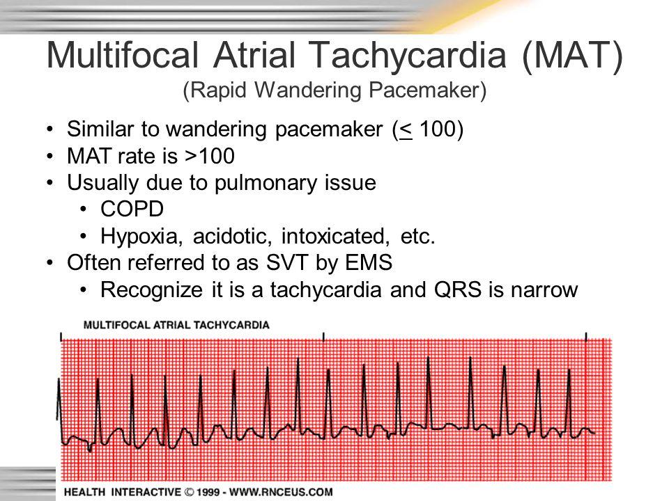 Multifocal Atrial Tachycardia (MAT) (Rapid Wandering Pacemaker)
