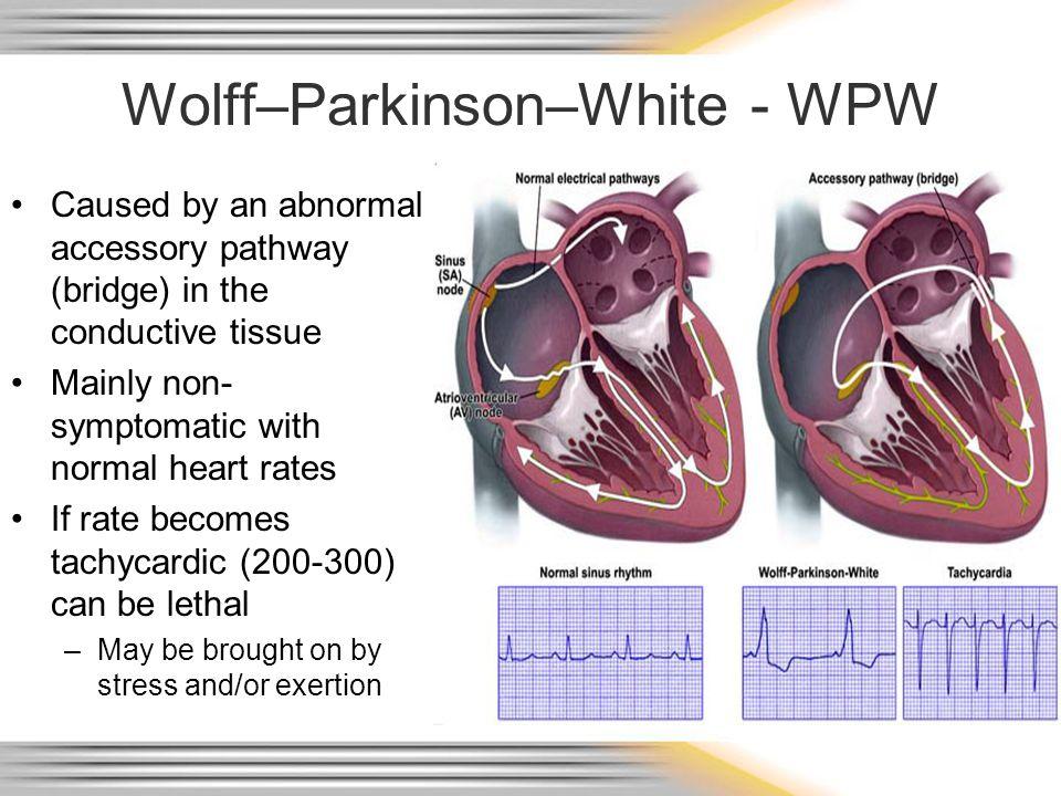 Wolff–Parkinson–White - WPW