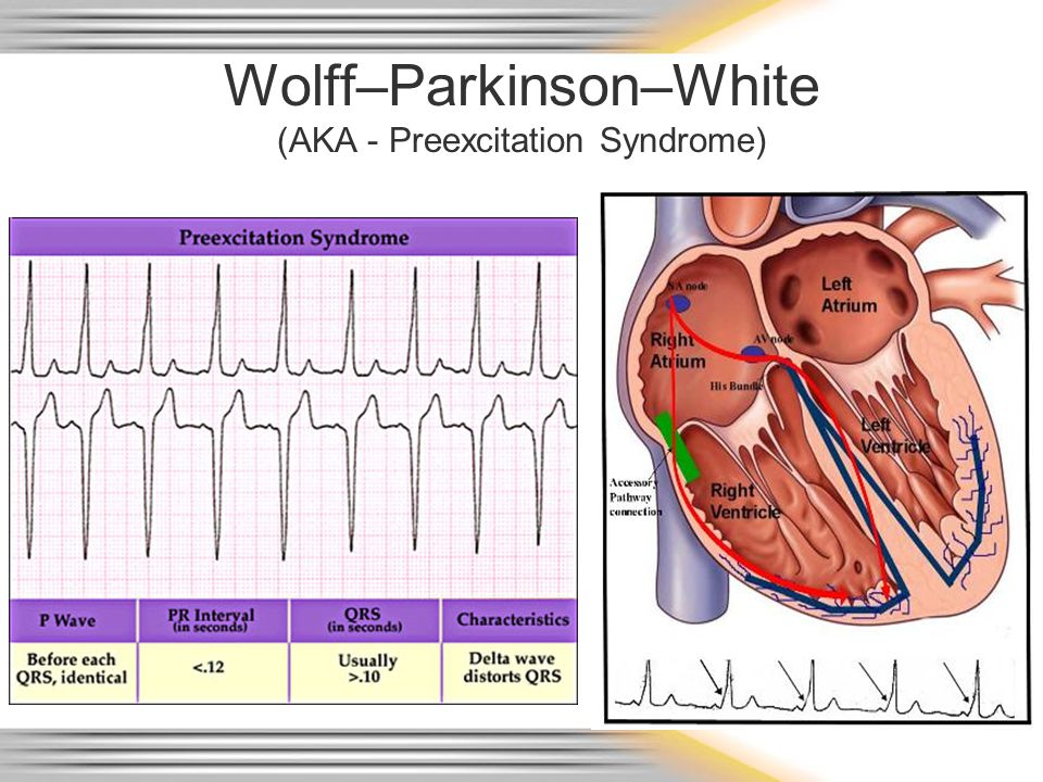 Wolff–Parkinson–White (AKA - Preexcitation Syndrome)