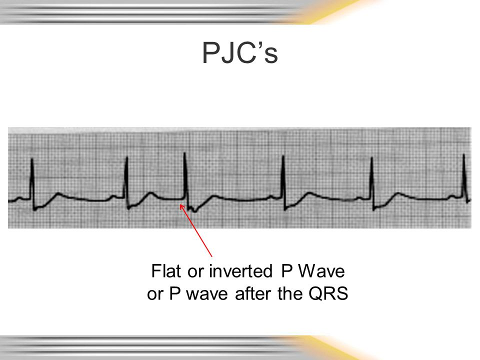 PJC's Flat or inverted P Wave or P wave after the QRS