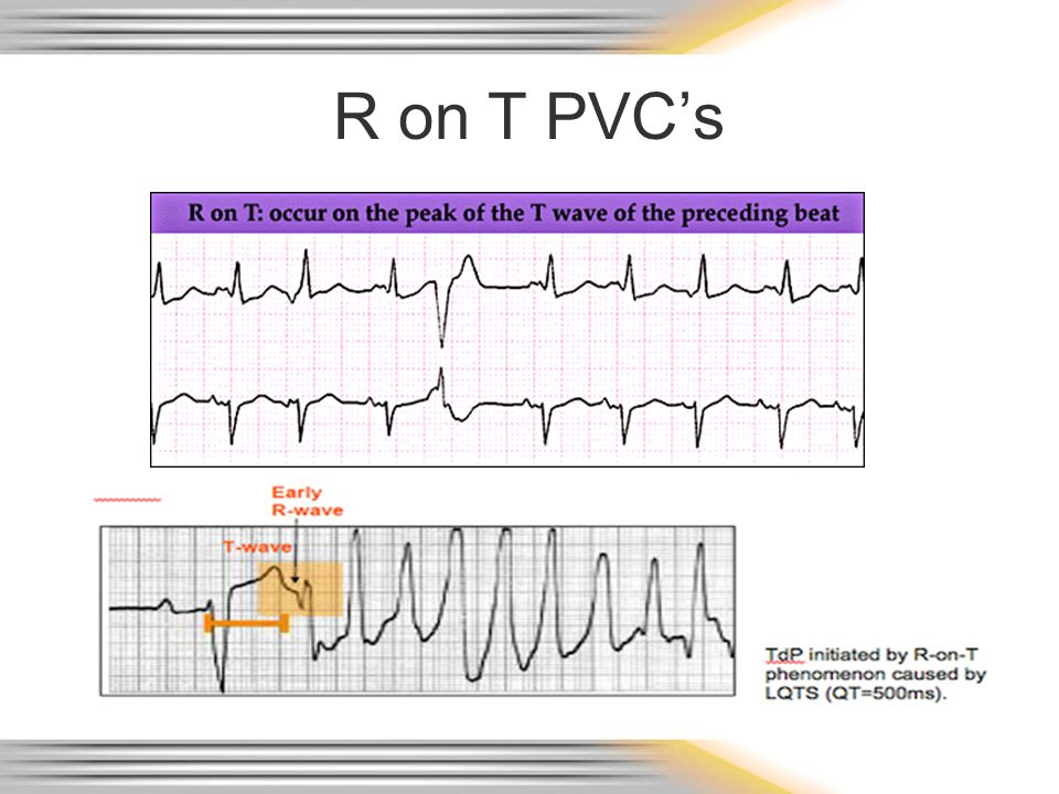 R on T PVC's TdP – Torsades de Pointes. QRS is wide, > 0.12 seconds, and bizarre with a rate often over 150 beats per minute.