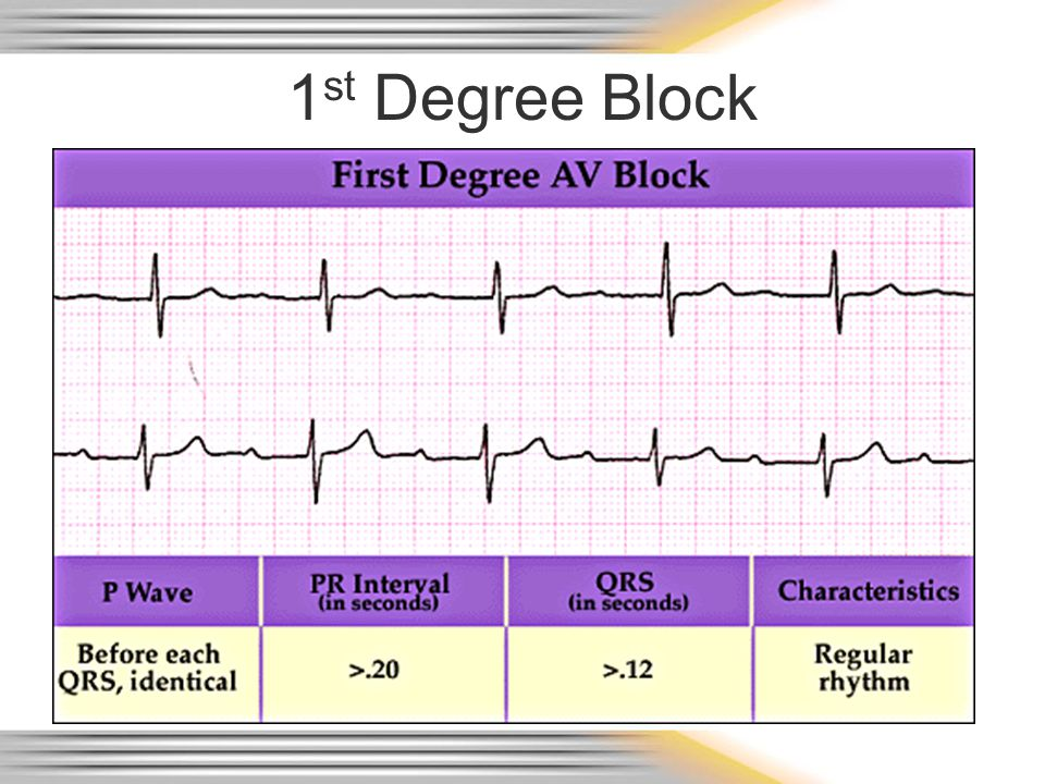 1st Degree Block