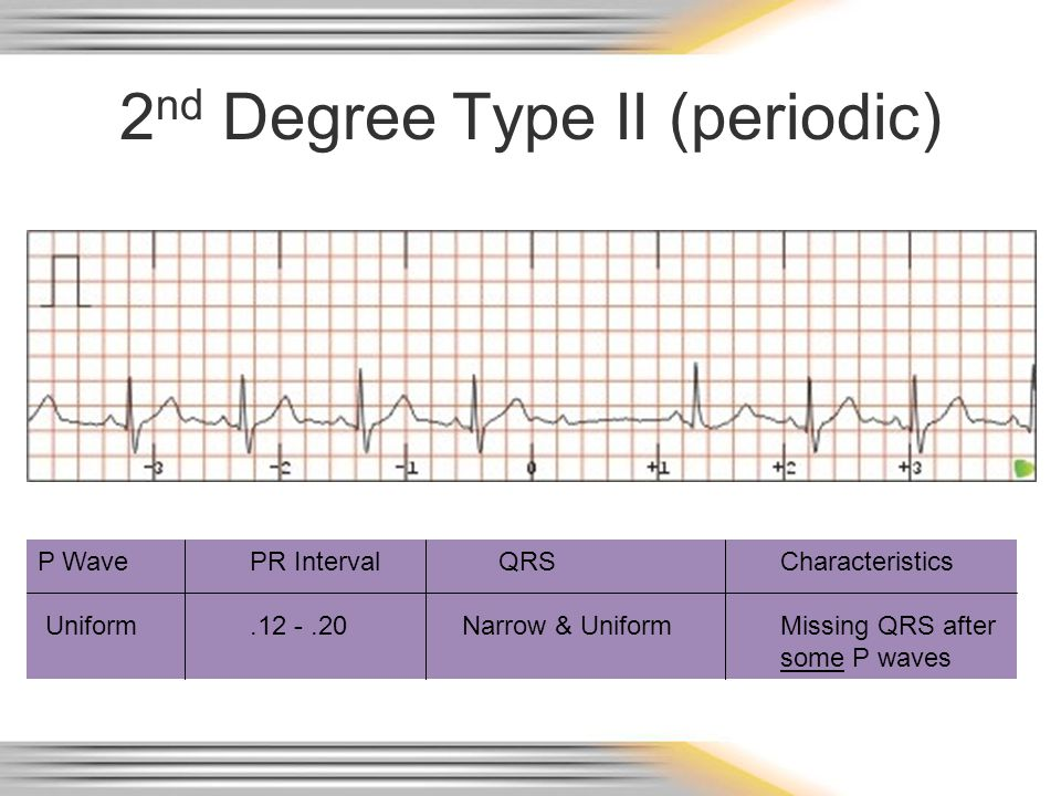 2nd Degree Type II (periodic)
