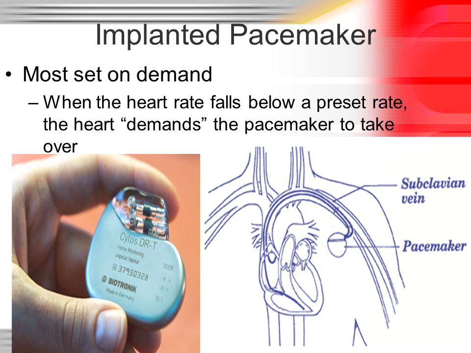 Implanted Pacemaker Most set on demand