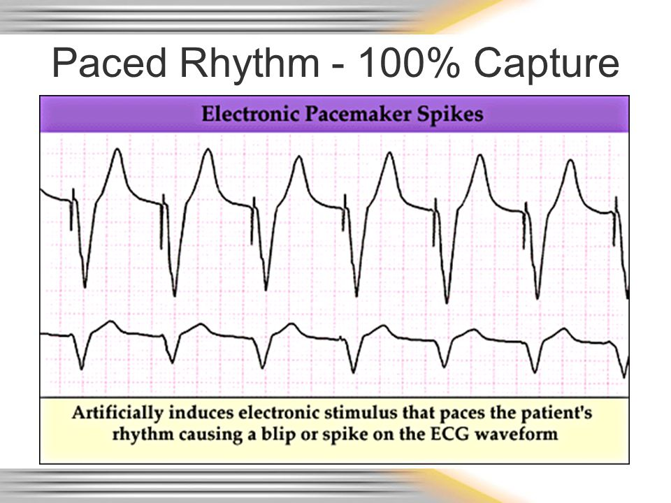 Paced Rhythm - 100% Capture