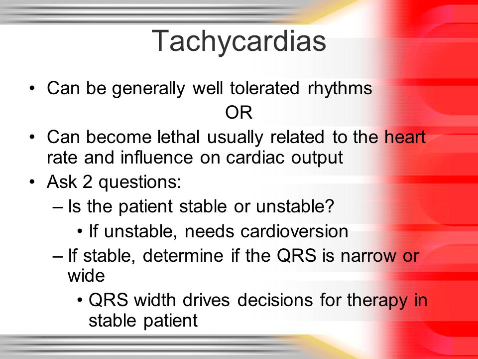 Tachycardias Can be generally well tolerated rhythms OR